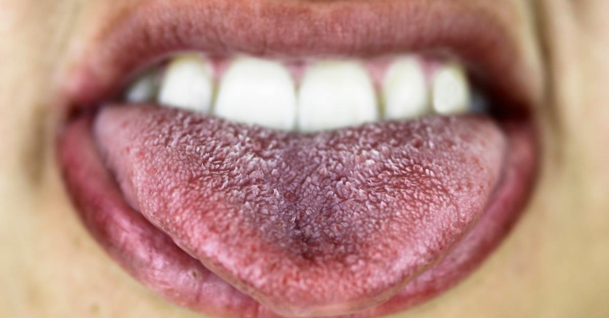 Árulkodó jelek a szádban! - A szájüreg rák jelei és a természetes megelőzés