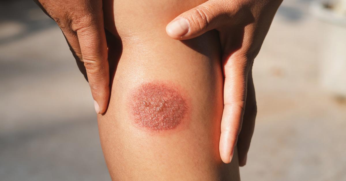 Égési sérülések kezelése  - égések fokozatai, természetes és orvosi ellátásuk