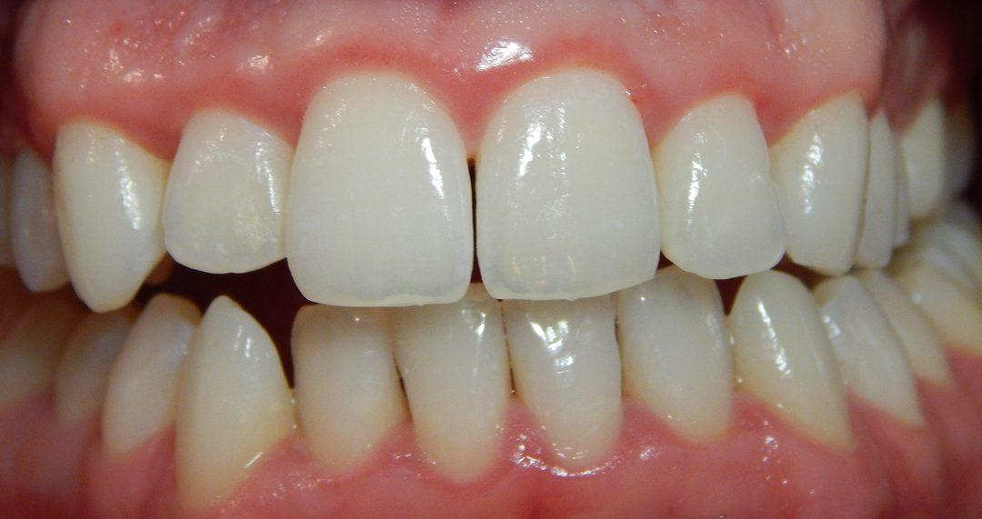 Vérző, gyulladt fogíny? Ne hanyagold el, mert súlyos bajt okozhat!
